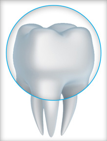 dental crowns in Lithia FL