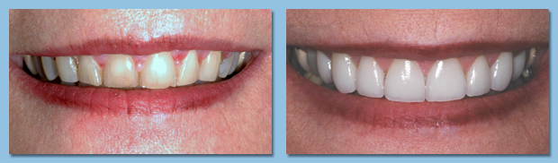 Before and after photo of porcelain dental veneer patient.